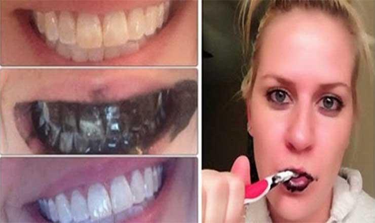 Truque Para Branquear Os Dentes De Forma Rapida E Duradoura 1001